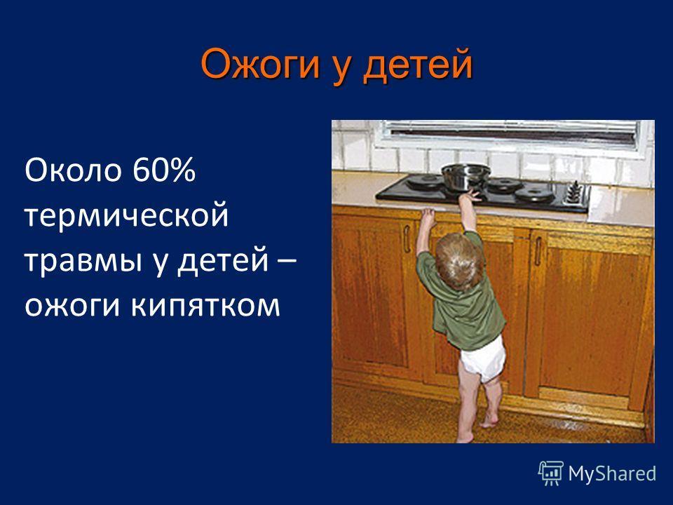 Ожоги у детей Около 60% термической травмы у детей – ожоги кипятком