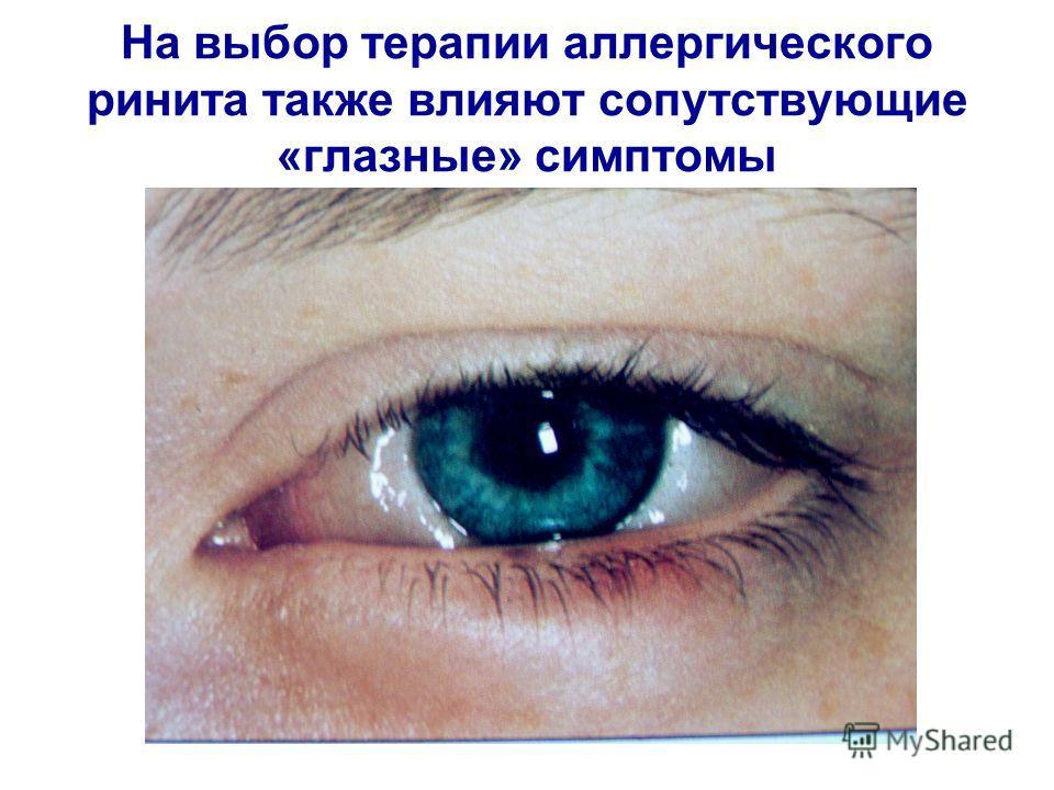 На выбор терапии аллергического ринита также влияют сопутствующие «глазные» симптомы