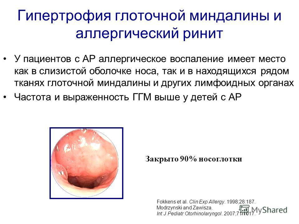 Гипертрофия глоточной миндалины и аллергический ринит У пациентов с АР аллергическое воспаление имеет место как в слизистой оболочке носа, так и в находящихся рядом тканях глоточной миндалины и других лимфоидных органах Частота и выраженность ГГМ выш