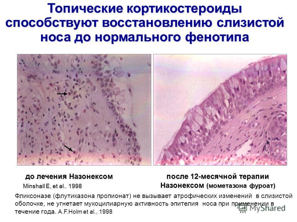 до лечения Назонексом после 12-месячной терапии Назонексом (мометазона фуроат) Minshall E, et al.. 1998 Топические кортикостероиды способствуют восстановлению слизистой носа до нормального фенотипа Фликсоназе (флутиказона пропионат) не вызывает атроф