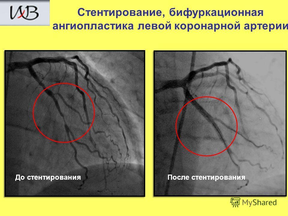 До стентированияПосле стентирования Стентирование, бифуркационная ангиопластика левой коронарной артерии