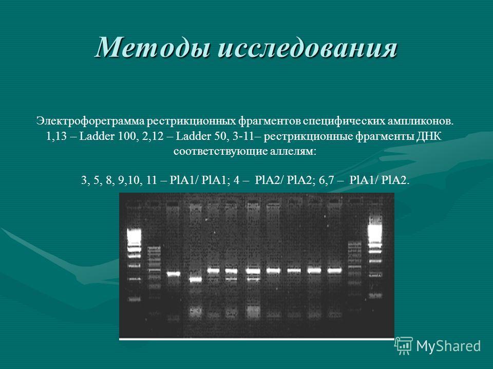 Методы исследования Электрофореграмма рестрикционных фрагментов специфических ампликонов. 1,13 – Ladder 100, 2,12 – Ladder 50, 3-11– рестрикционные фрагменты ДНК соответствующие аллелям: 3, 5, 8, 9,10, 11 – PlA1/ PlA1; 4 – PlA2/ PlA2; 6,7 – PlA1/ PlA