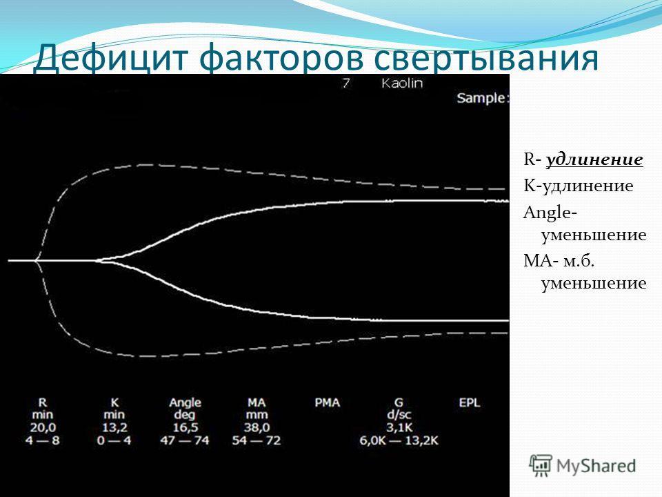 Гиперкоагуляция R- укорочение K-укорочение Angle- увеличение МА- увеличение