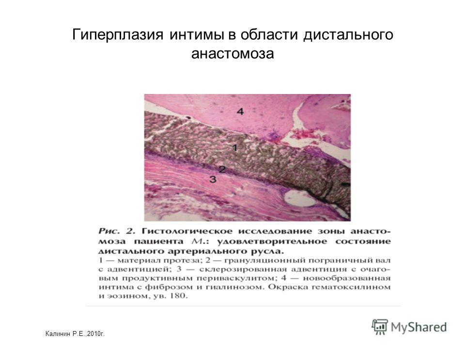 Гиперплазия интимы в области дистального анастомоза Калинин Р.Е.,2010г.