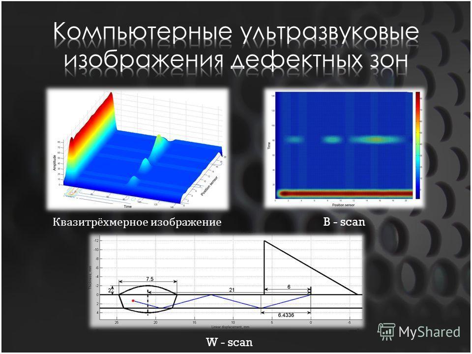 Квазитрёхмерное изображение B - scan W - scan
