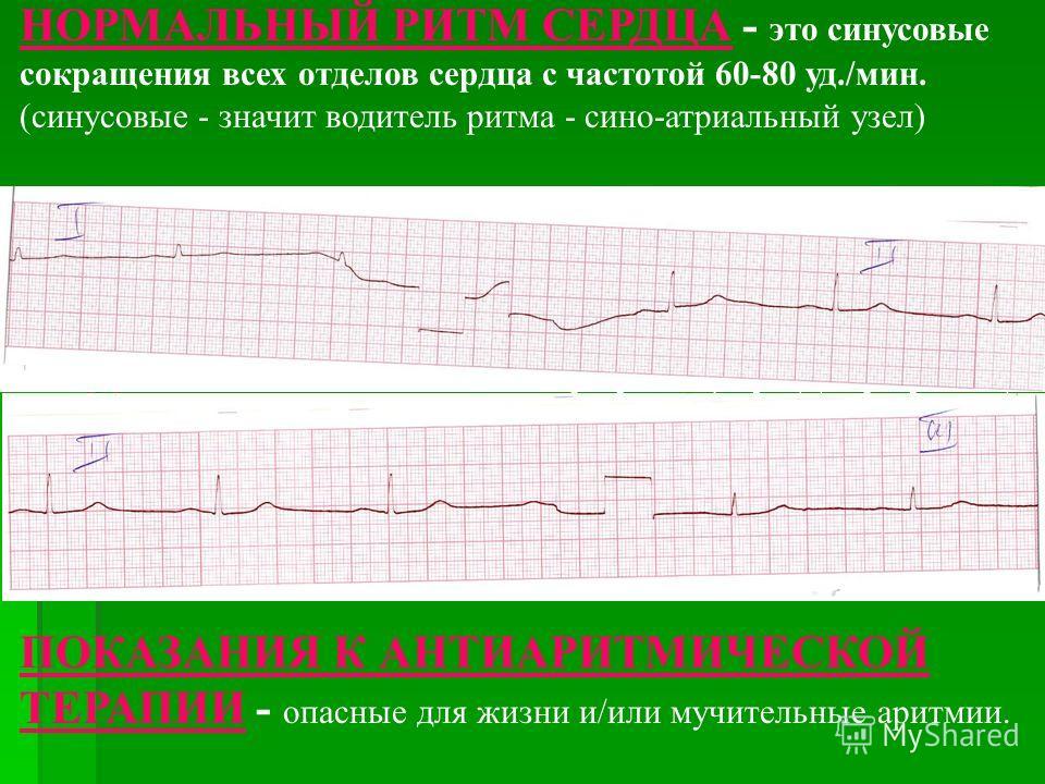 НОРМАЛЬНЫЙ РИТМ СЕРДЦА - это синусовые сокращения всех отделов сердца с частотой 60-80 уд./мин. (синусовые - значит водитель ритма - сино-атриальный узел) НАРУШЕНИЯ РИТМА СЕРДЦА (АРИТМИИ) - это любые отклонения от нормального ритма сокращений всего с