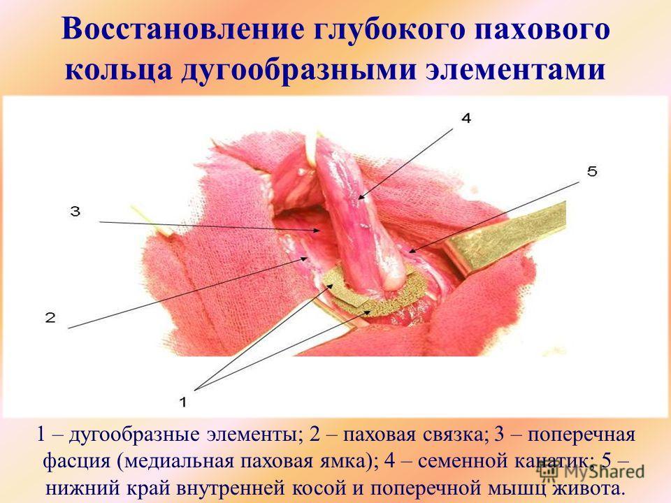 Восстановление глубокого пахового кольца дугообразными элементами 1 – дугообразные элементы; 2 – паховая связка; 3 – поперечная фасция (медиальная паховая ямка); 4 – семенной канатик; 5 – нижний край внутренней косой и поперечной мышц живота.