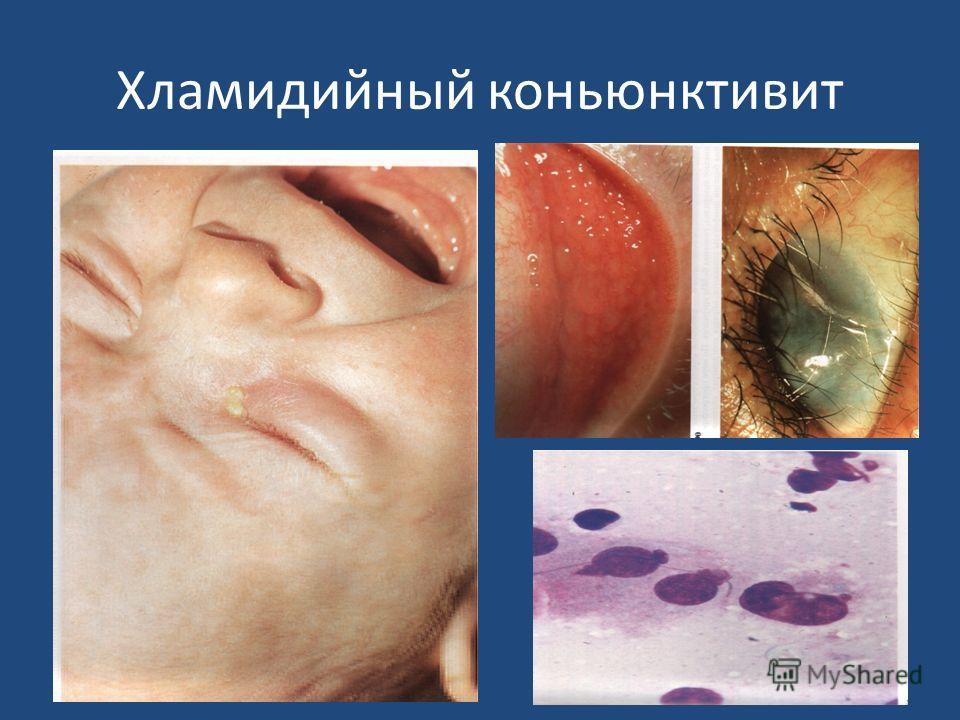 Хламидийный коньюнктивит