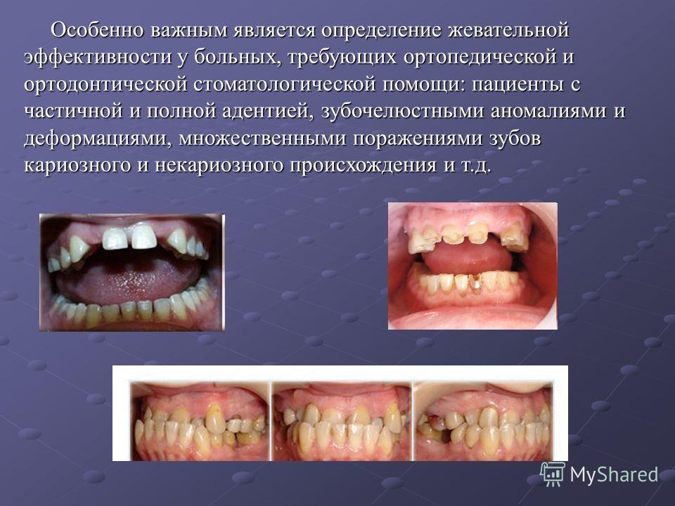 Особенно важным является определение жевательной эффективности у больных, требующих ортопедической и ортодонтической стоматологической помощи: пациенты с частичной и полной адентией, зубочелюстными аномалиями и деформациями, множественными поражениям