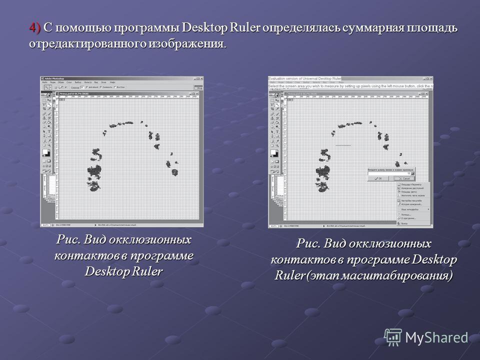 4) С помощью программы Desktop Ruler определялась суммарная площадь отредактированного изображения. Рис. Вид окклюзионных контактов в программе Desktop Ruler(этап масштабирования) Рис. Вид окклюзионных контактов в программе Desktop Ruler
