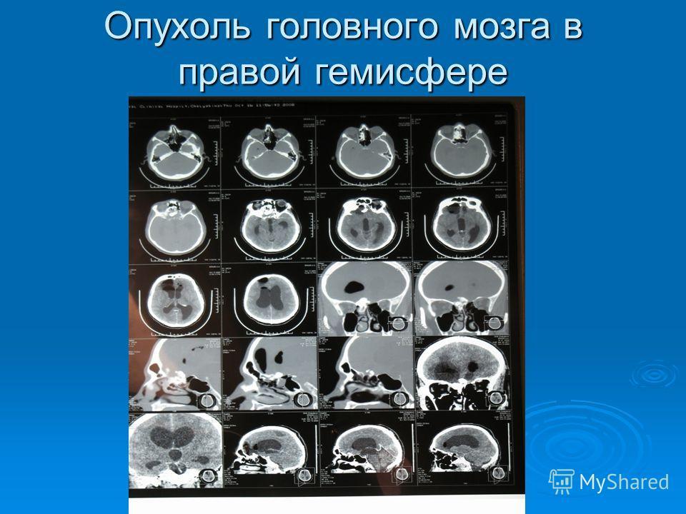 Опухоль головного мозга в правой гемисфере
