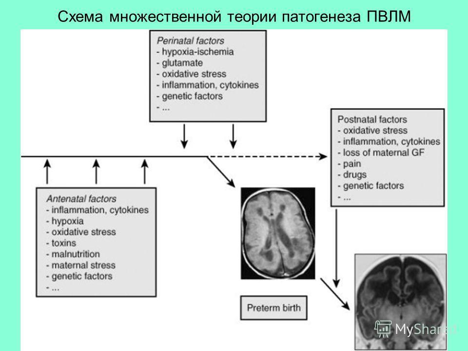 Схема множественной теории патогенеза ПВЛМ