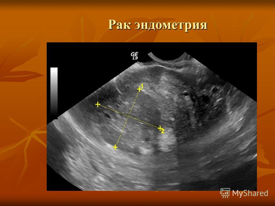 Как выглядит рак шейки матки на узи