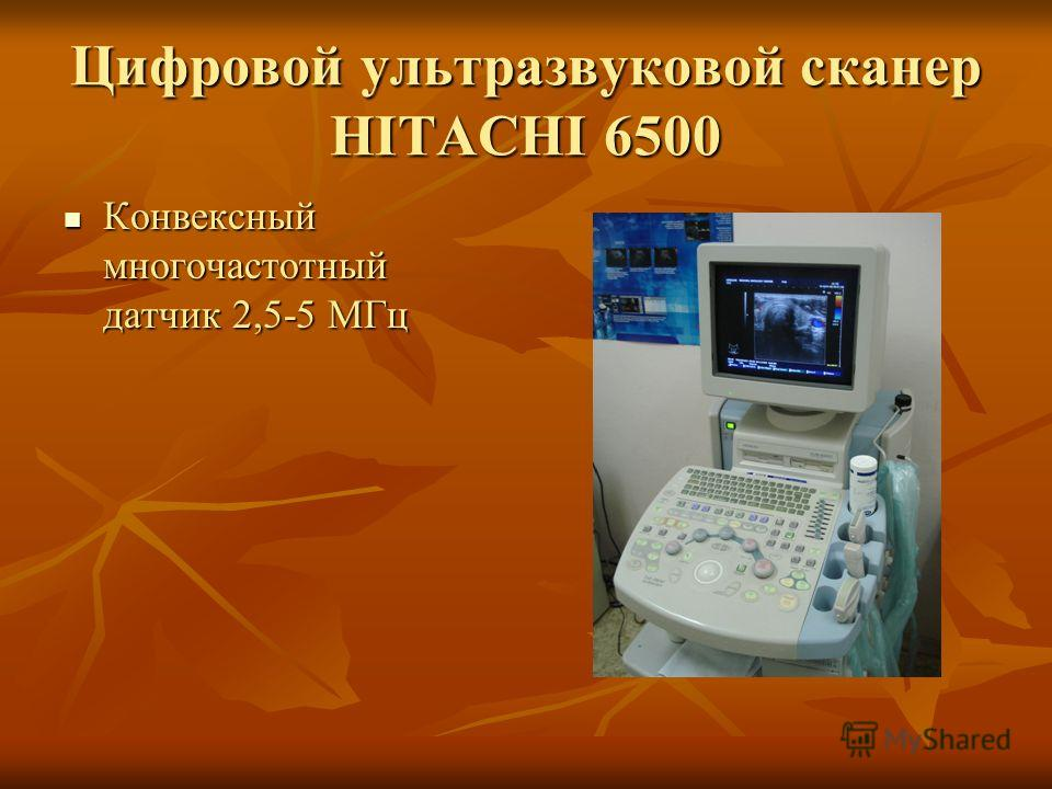 Цифровой ультразвуковой сканер HITACHI 6500 Конвексный многочастотный датчик 2,5-5 МГц Конвексный многочастотный датчик 2,5-5 МГц