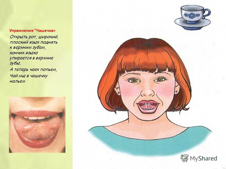 Упражнение Чашечка« Открыть рот, широкий, плоский язык поднять к верхним зубам, кончик языка упирается в верхние зубы. А теперь чаек попьем, Чай мы в чашечку нальем