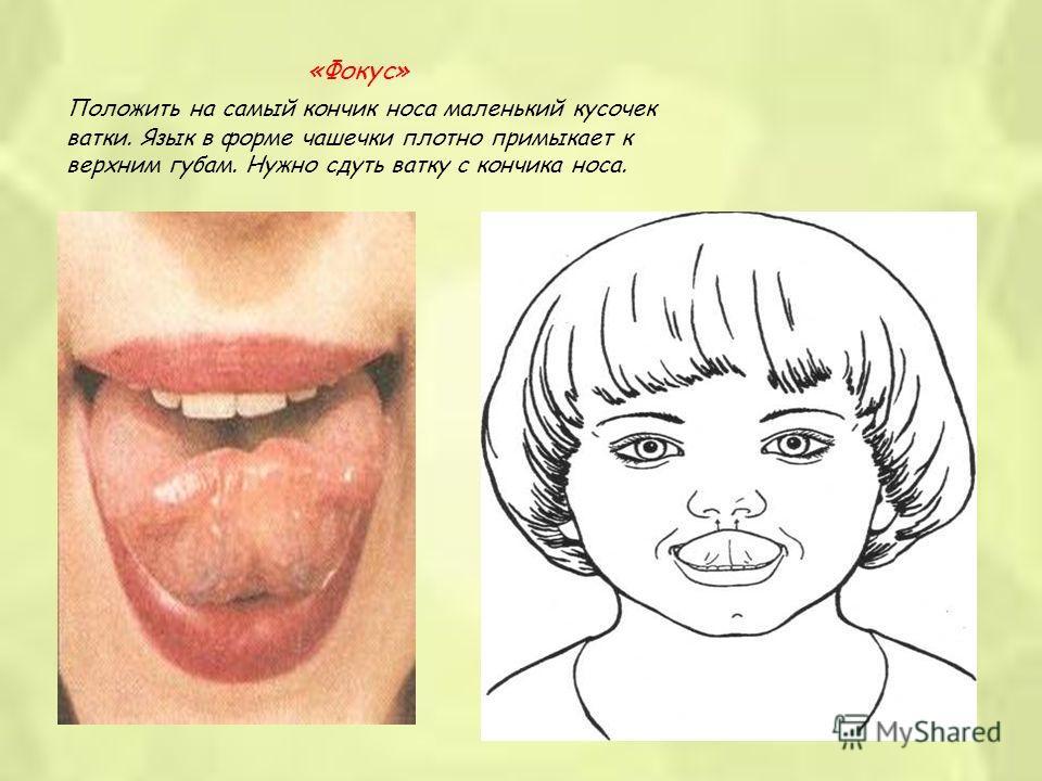 «Фокус» Положить на самый кончик носа маленький кусочек ватки. Язык в форме чашечки плотно примыкает к верхним губам. Нужно сдуть ватку с кончика носа.