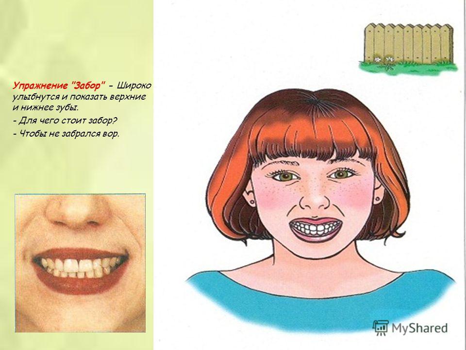 Упражнение Забор - Широко улыбнутся и показать верхние и нижнее зубы. - Для чего стоит забор? - Чтобы не забрался вор.