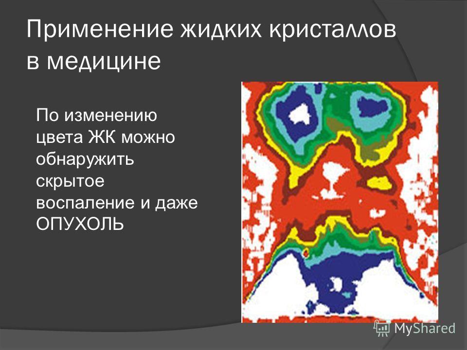Применение жидких кристаллов в медицине По изменению цвета ЖК можно обнаружить скрытое воспаление и даже ОПУХОЛЬ