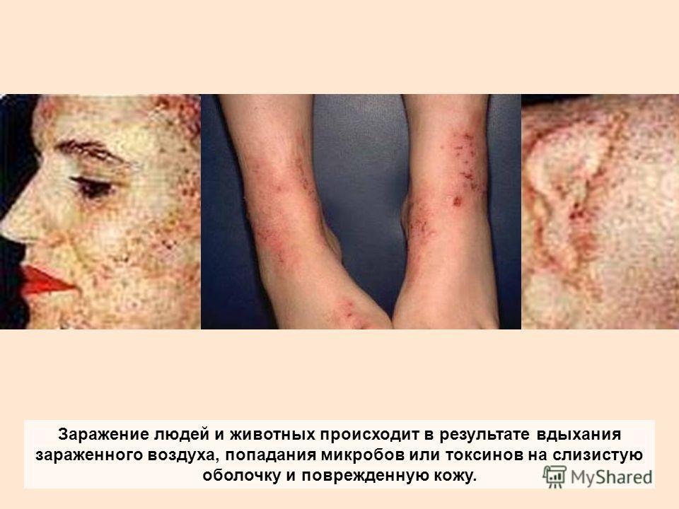 Заражение людей и животных происходит в результате вдыхания зараженного воздуха, попадания микробов или токсинов на слизистую оболочку и поврежденную кожу.