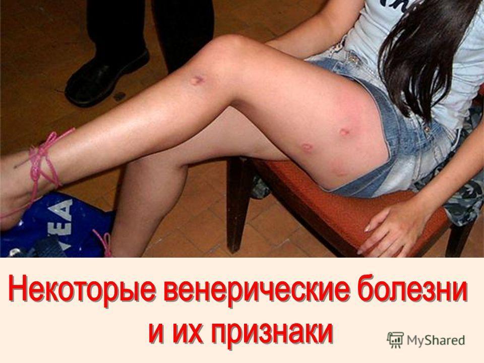 картинки заболеваний: