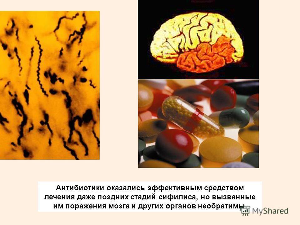 Антибиотики оказались эффективным средством лечения даже поздних стадий сифилиса, но вызванные им поражения мозга и других органов необратимы.