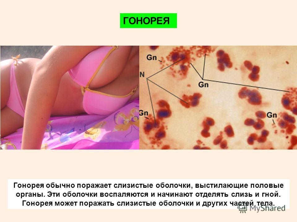 ГОНОРЕЯ Гонорея обычно поражает слизистые оболочки, выстилающие половые органы. Эти оболочки воспаляются и начинают отделять слизь и гной. Гонорея может поражать слизистые оболочки и других частей тела.
