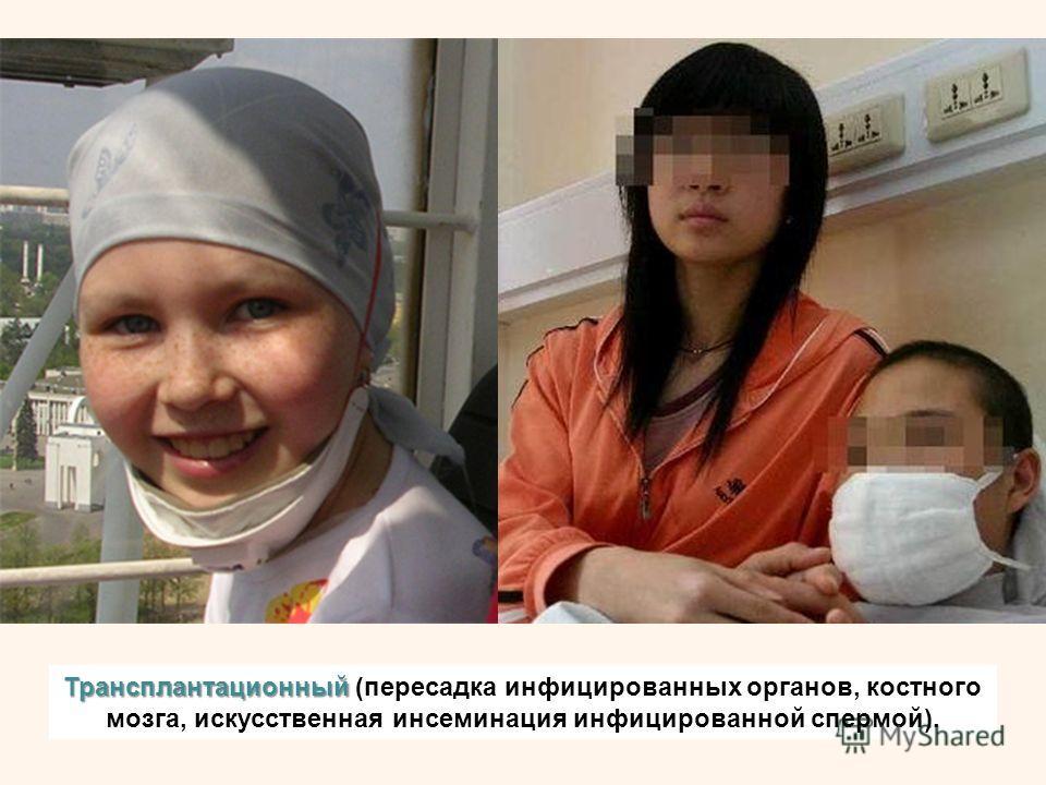 Трансплантационный Трансплантационный (пересадка инфицированных органов, костного мозга, искусственная инсеминация инфицированной спермой).
