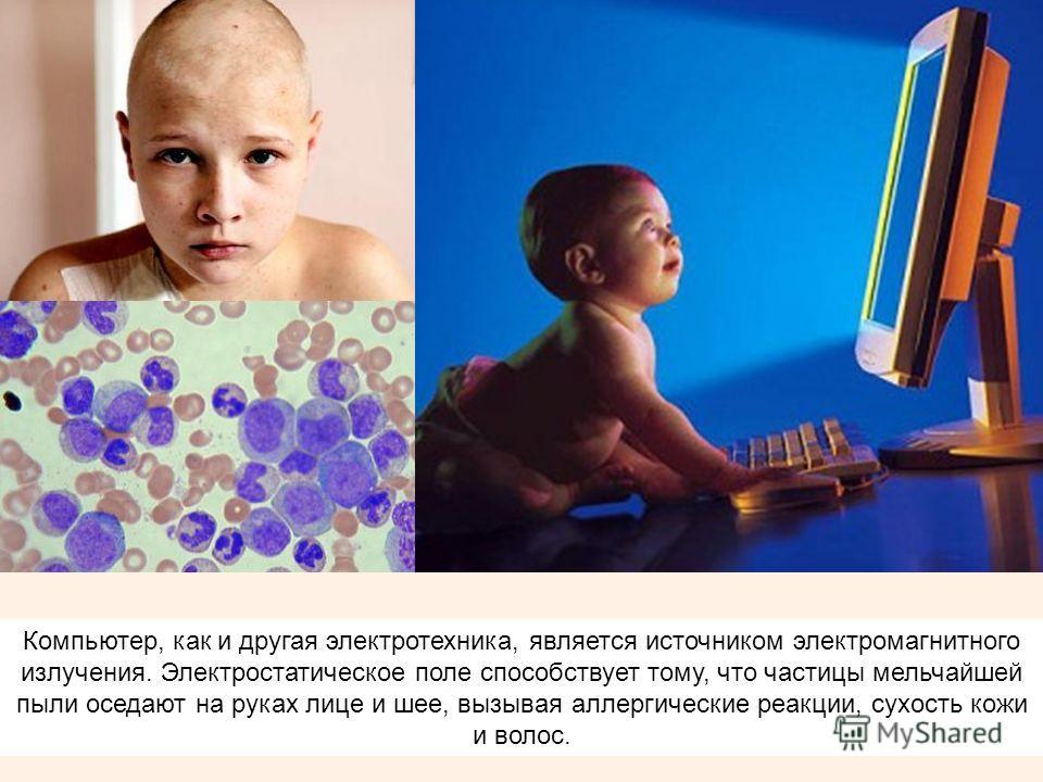 Компьютер, как и другая электротехника, является источником электромагнитного излучения. Электростатическое поле способствует тому, что частицы мельчайшей пыли оседают на руках лице и шее, вызывая аллергические реакции, сухость кожи и волос.