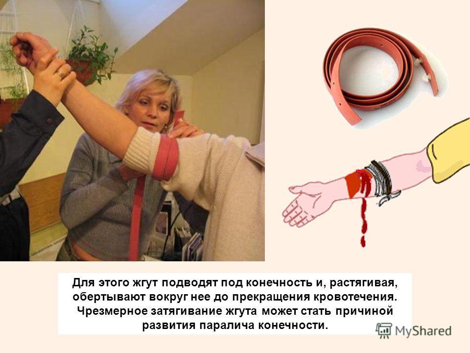 Для этого жгут подводят под конечность и, растягивая, обертывают вокруг нее до прекращения кровотечения. Чрезмерное затягивание жгута может стать причиной развития паралича конечности.