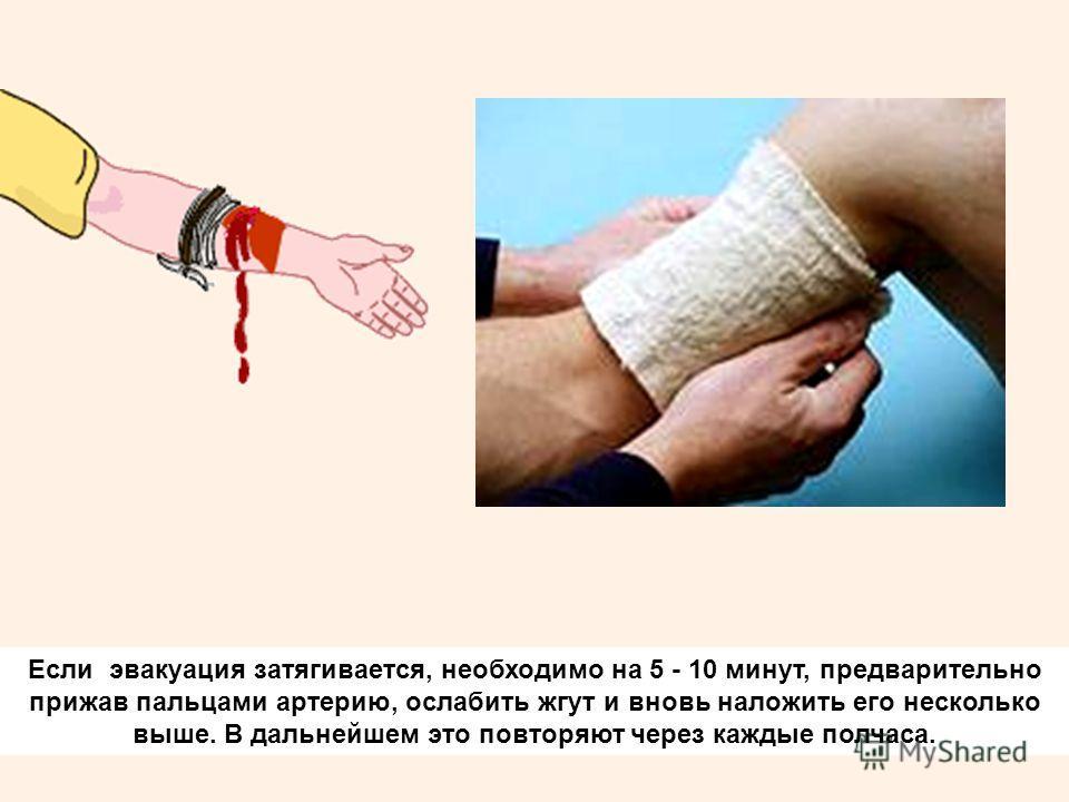 Если эвакуация затягивается, необходимо на 5 - 10 минут, предварительно прижав пальцами артерию, ослабить жгут и вновь наложить его несколько выше. В дальнейшем это повторяют через каждые полчаса.