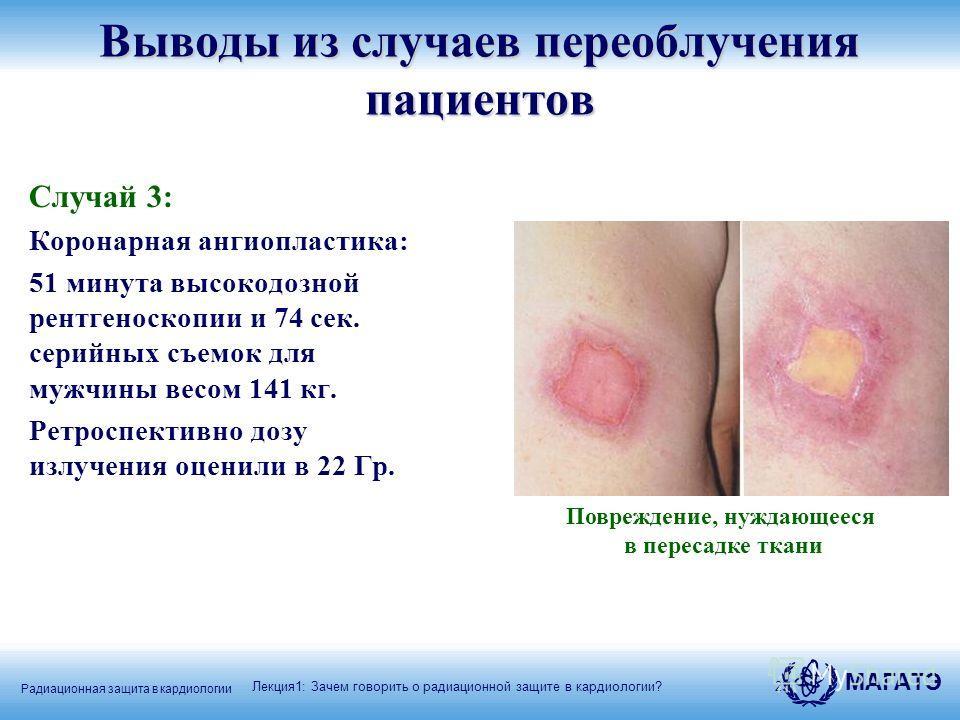 Радиационная защита в кардиологии МАГАТЭ 23 Случай 3: Коронарная ангиопластика: 51 минута высокодозной рентгеноскопии и 74 сек. серийных съемок для мужчины весом 141 кг. Ретроспективно дозу излучения оценили в 22 Гр. Лекция1: Зачем говорить о радиаци