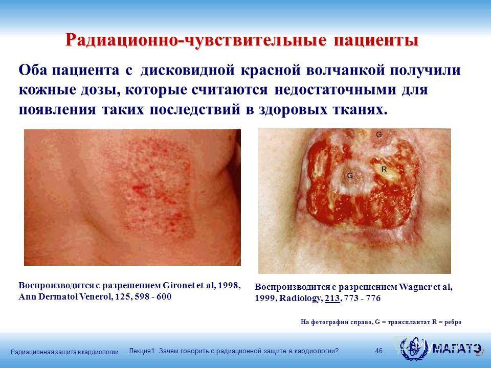 Радиационная защита в кардиологии МАГАТЭ 46 Оба пациента с дисковидной красной волчанкой получили кожные дозы, которые считаются недостаточными для появления таких последствий в здоровых тканях. Воспроизводится с разрешением Wagner et al, 1999, Radio