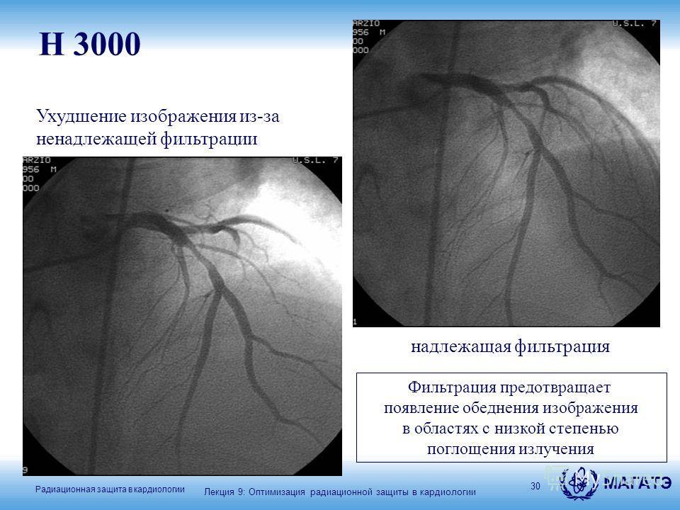 МАГАТЭ Радиационная защита в кардиологии 30 надлежащая фильтрация Ухудшение изображения из-за ненадлежащей фильтрации H 3000 Фильтрация предотвращает появление обеднения изображения в областях с низкой степенью поглощения излучения Лекция 9: Оптимиза