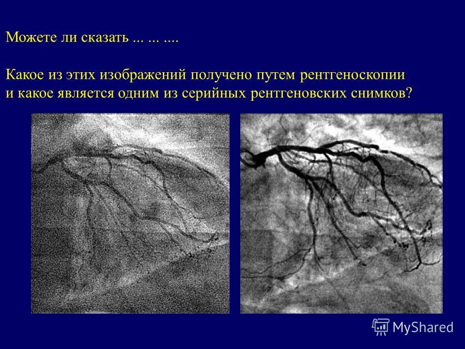 Можете ли сказать.......... Какое из этих изображений получено путем рентгеноскопии и какое является одним из серийных рентгеновских снимков?