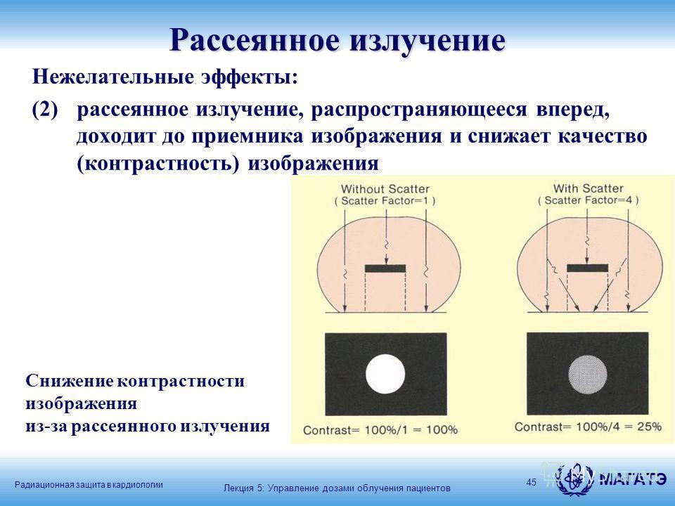 Радиационная защита в кардиологии МАГАТЭ 45 Рассеянное излучение Нежелательные эффекты: (2) рассеянное излучение, распространяющееся вперед, доходит до приемника изображения и снижает качество (контрастность) изображения Снижение контрастности изобра