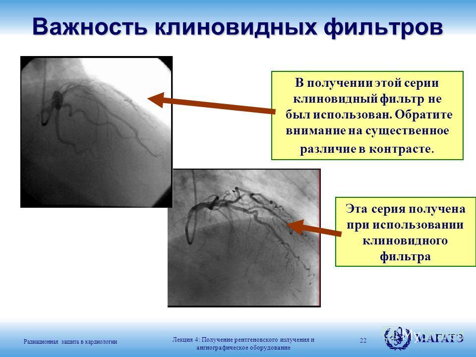 Радиационная защита в кардиологии МАГАТЭ 22 В получении этой серии клиновидный фильтр не был использован. Обратите внимание на существенное различие в контрасте. Эта серия получена при использовании клиновидного фильтраВажность клиновидных фильтров Л
