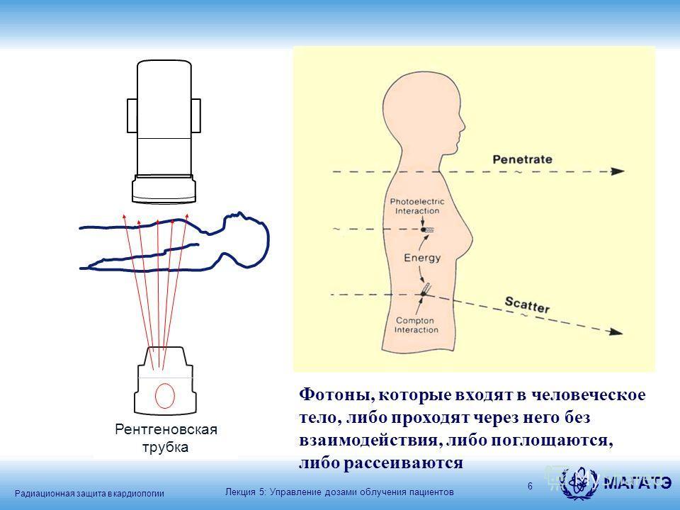 Радиационная защита в кардиологии МАГАТЭ 6 X-ray tube Фотоны, которые входят в человеческое тело, либо проходят через него без взаимодействия, либо поглощаются, либо рассеиваются Лекция 5: Управление дозами облучения пациентов Рентгеновская трубка