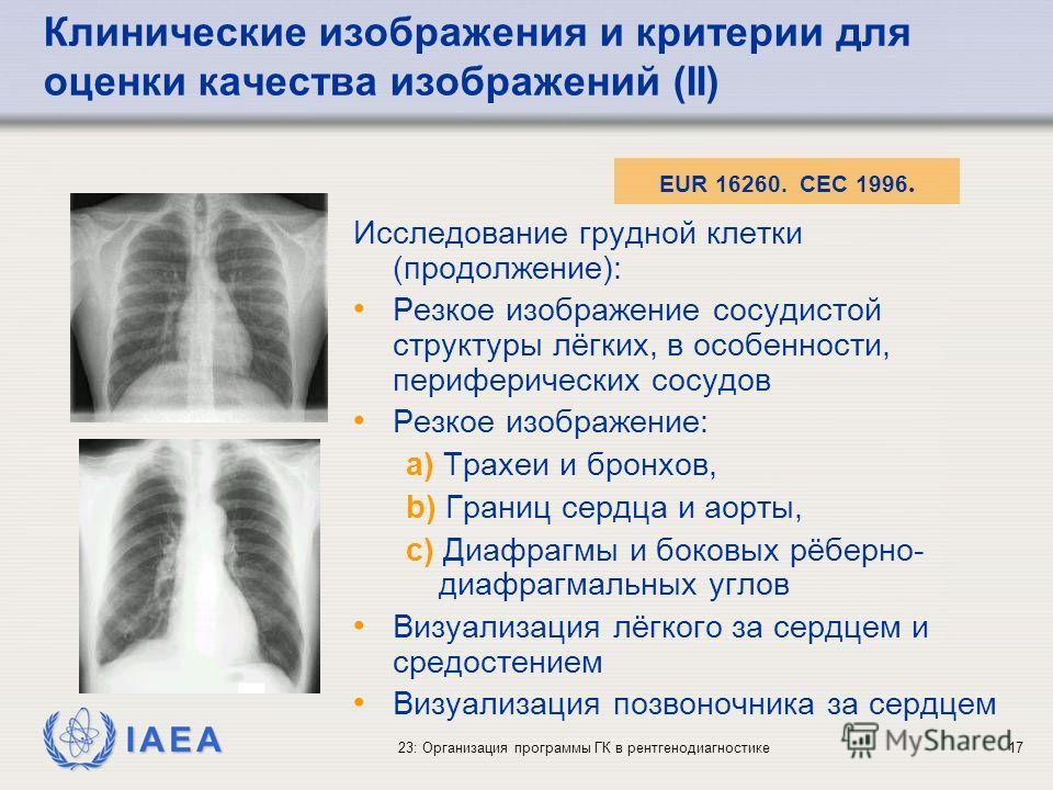 IAEA 23: Организация программы ГК в рентгенодиагностике17 Исследование грудной клетки (продолжение): Резкое изображение сосудистой структуры лёгких, в особенности, периферических сосудов Резкое изображение: a) Трахеи и бронхов, b) Границ сердца и аор