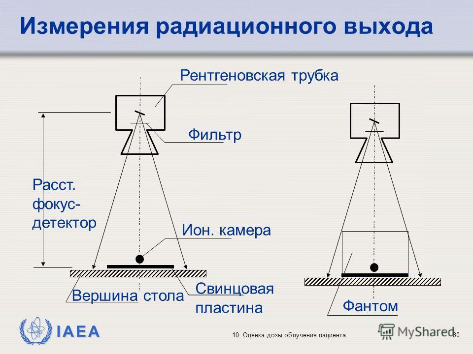 IAEA 10: Оценка дозы облучения пациента30 Измерения радиационного выхода Рентгеновская трубка Фильтр Ион. камера Свинцовая пластина Вершина стола Расст. фокус- детектор Фантом