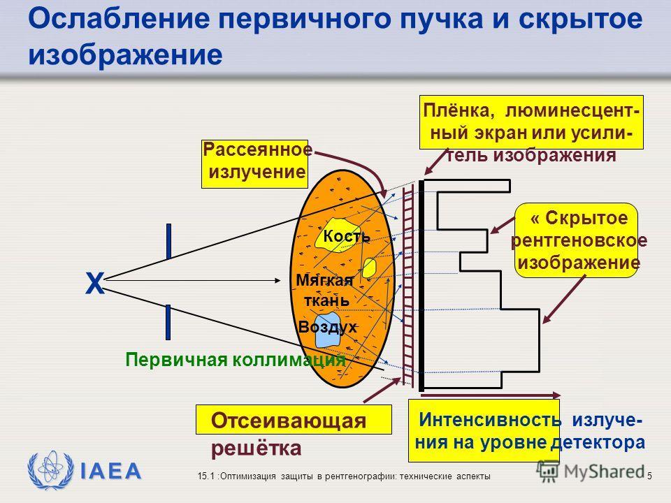 IAEA 15.1 :Оптимизация защиты в рентгенографии: технические аспекты5 Ослабление первичного пучка и скрытое изображение