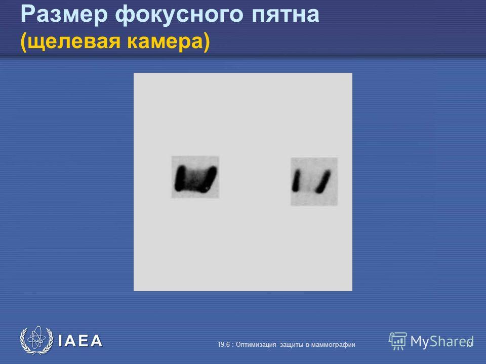 IAEA 19.6 : Оптимизация защиты в маммографии13 Размер фокусного пятна (щелевая камера)