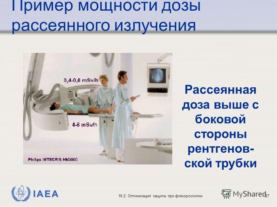IAEA 16.2: Оптимизация защиты при флюороскопии27 Рассеянная доза выше с боковой стороны рентгенов- ской трубки Пример мощности дозы рассеянного излучения