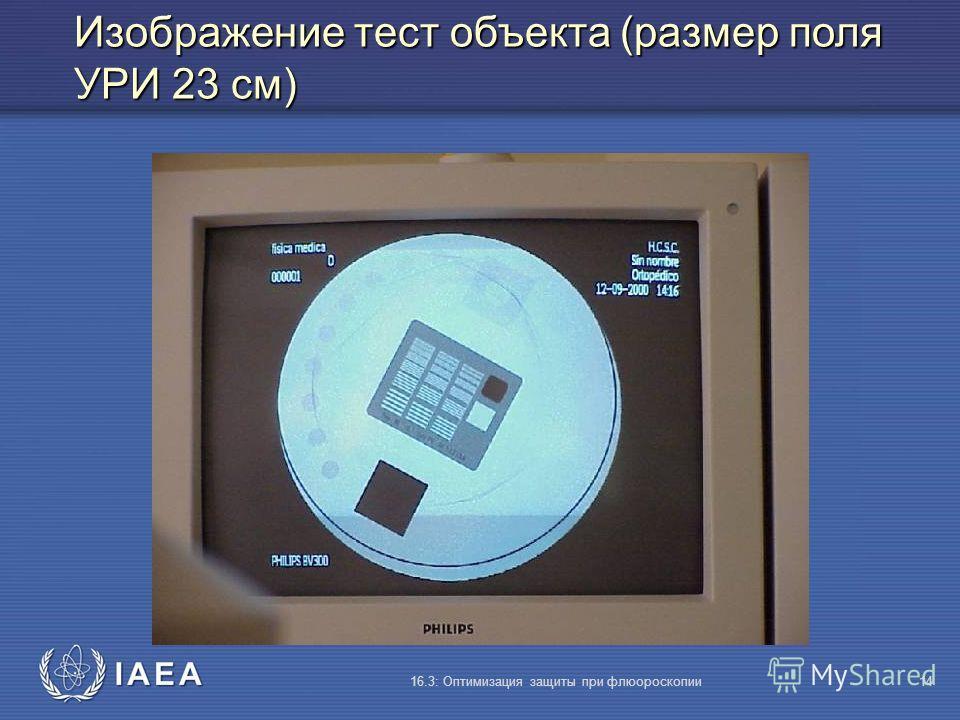 IAEA 16.3: Оптимизация защиты при флюороскопии14 Изображение тест объекта (размер поля УРИ 23 cм)