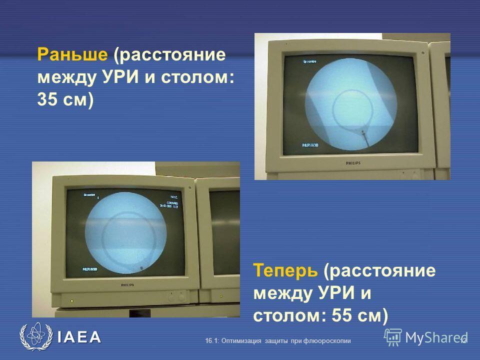 IAEA 16.1: Оптимизация защиты при флюороскопии12 Раньше (расстояние между УРИ и столом: 35 cм) Теперь (расстояние между УРИ и столом: 55 cм)