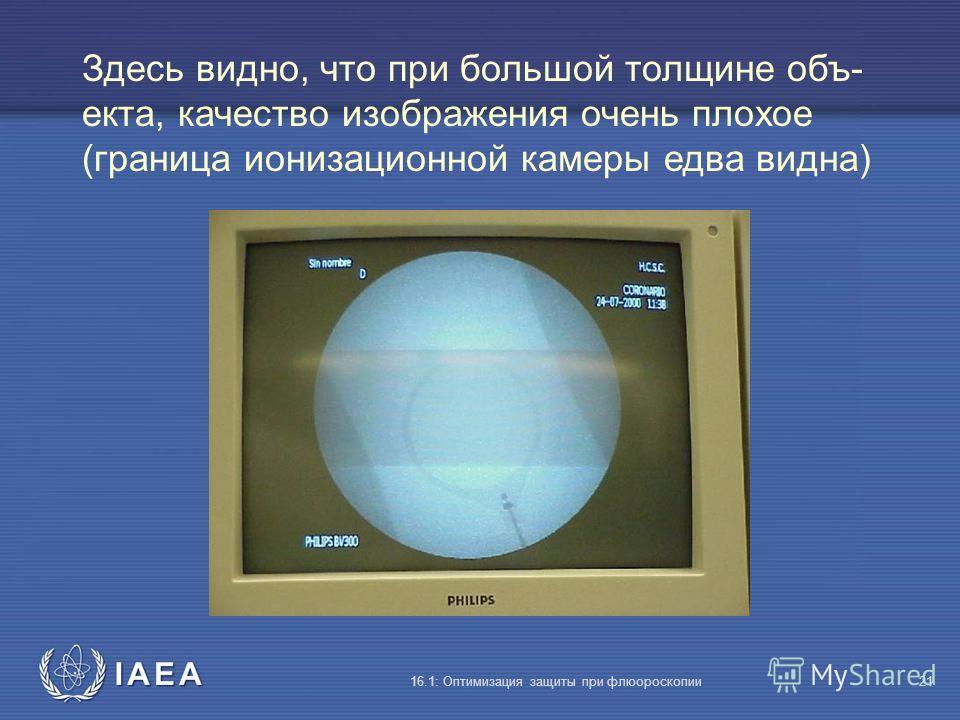 IAEA 16.1: Оптимизация защиты при флюороскопии21 Здесь видно, что при большой толщине объ- екта, качество изображения очень плохое (граница ионизационной камеры едва видна)