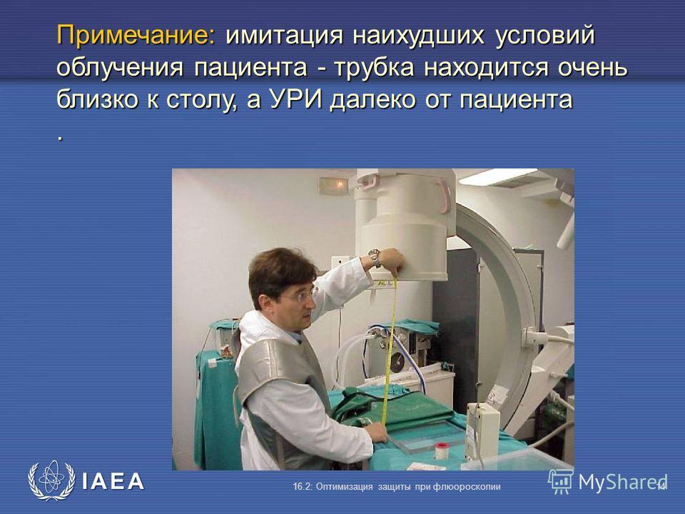 IAEA 16.2: Оптимизация защиты при флюороскопии14 Примечание: имитация наихудших условий облучения пациента - трубка находится очень близко к столу, а УРИ далеко от пациента.