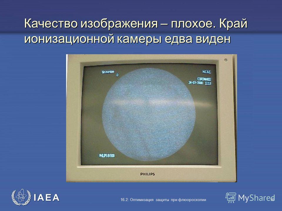 IAEA 16.2: Оптимизация защиты при флюороскопии16 Качество изображения – плохое. Край ионизационной камеры едва виден