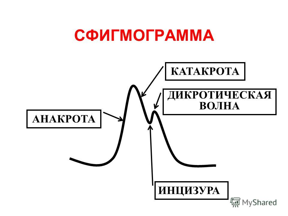 СФИГМОГРАММА АНАКРОТА КАТАКРОТА ДИКРОТИЧЕСКАЯ ВОЛНА ИНЦИЗУРА