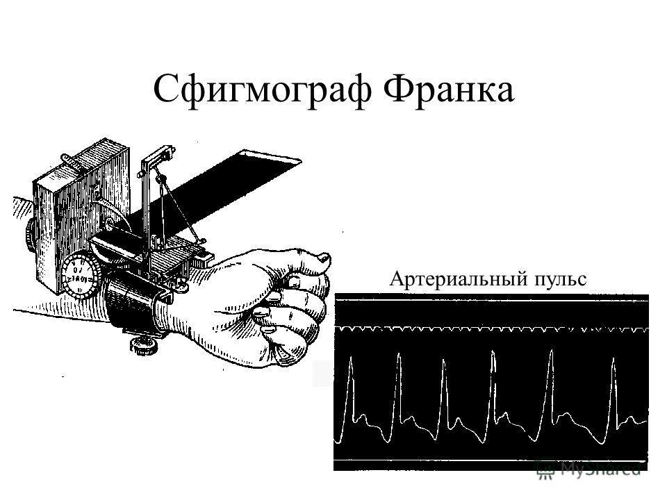 Сфигмограф Франка Сфигмограмма артериального пульса Артериальный пульс