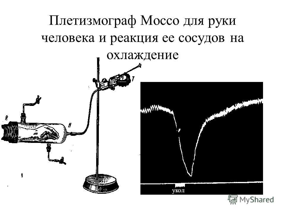 Плетизмограф Моссо для руки человека и реакция ее сосудов на охлаждение укол